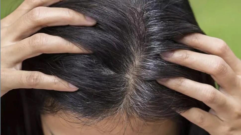 Hair care tips: तेजी से सफेद हो रहे हैं बाल तो करें ये काम, hair हो जाएंगे काले-घने और मजबूत