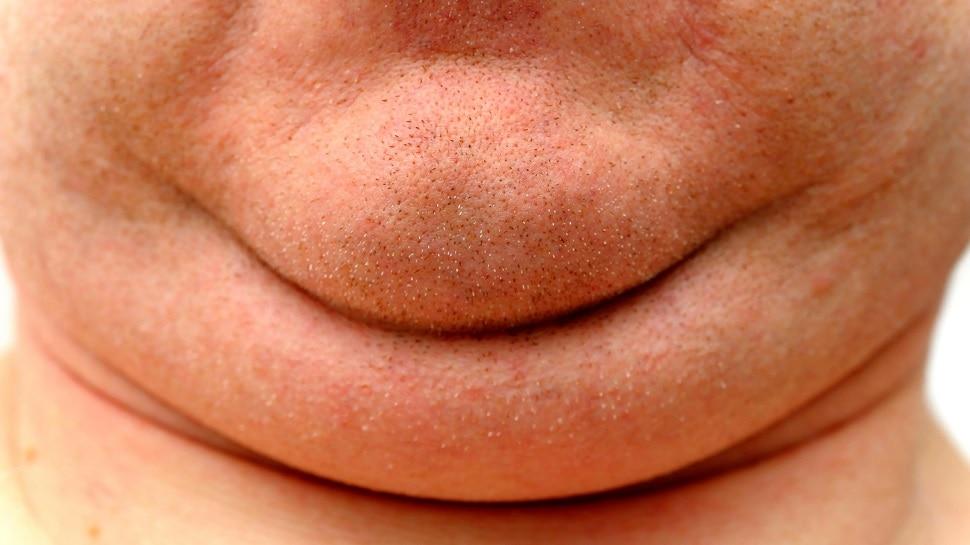 Double Chin Removal: डबल चिन पलभर में हो जाएगी गायब, देखने वालों को पता भी नहीं चलेगा