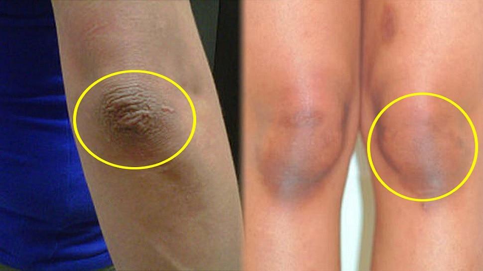 Dark Elbow and Knees: कोहनी और घुटनों से कालापन हटा देगा ये उपाय, आजमा कर खुद देखें रिजल्ट