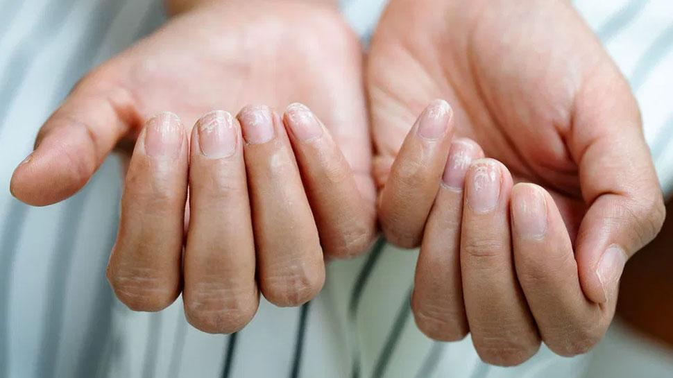 आपके नाखून बताते हैं कि आप कितने स्वस्थ हैं, जानिए कैसे करें देखभाल
