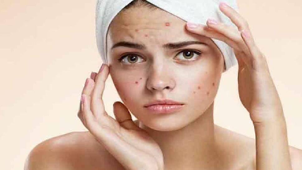 Acne removal remedies: मुंहासों के निशान हटा देंगे यह घरेलू उपाय, चेहरा दिखने लगेगा खूबसूरत
