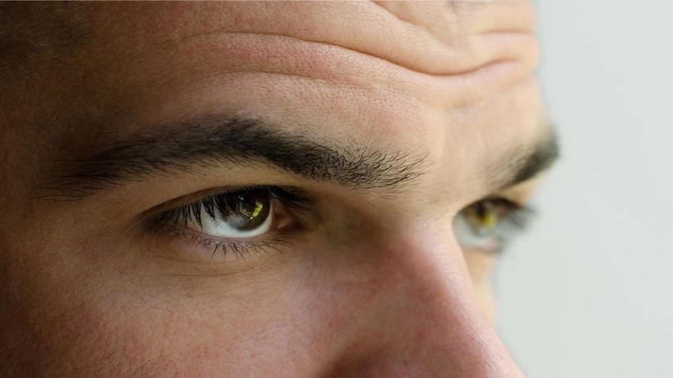 How to remove wrinkles: ये 5 चीजें खत्म कर देंगी झुर्रियां, समय से पहले नहीं होंगे बूढ़े