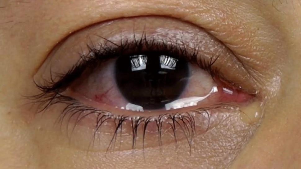 Eye Care: जिन लोगों की आंख से पानी आता है, उन्हें करना चाहिए ये काम, तुरंत मिलने लगेगा आराम