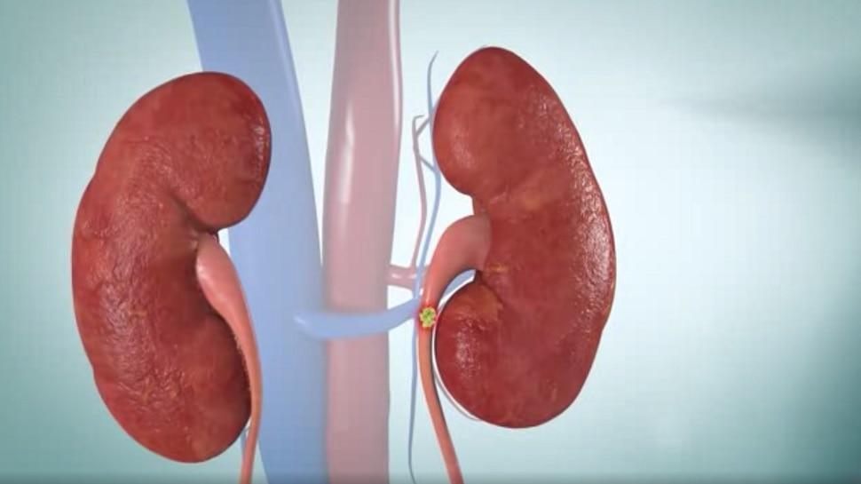 Kidney Fail: किडनियों को खराब करती हैं ये 5 आदतें, किडनी फेल होने से पहले दिखते हैं ये लक्षण
