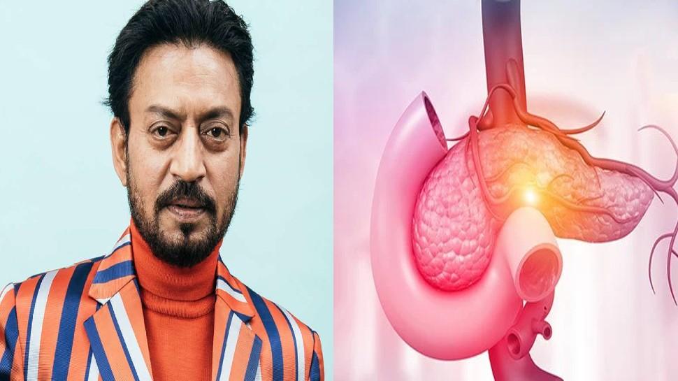 Actor Irrfan Khan का इस बीमारी से हुआ था निधन, जानिए इसके लक्षण, ऐसे कर सकते हैं बचाव