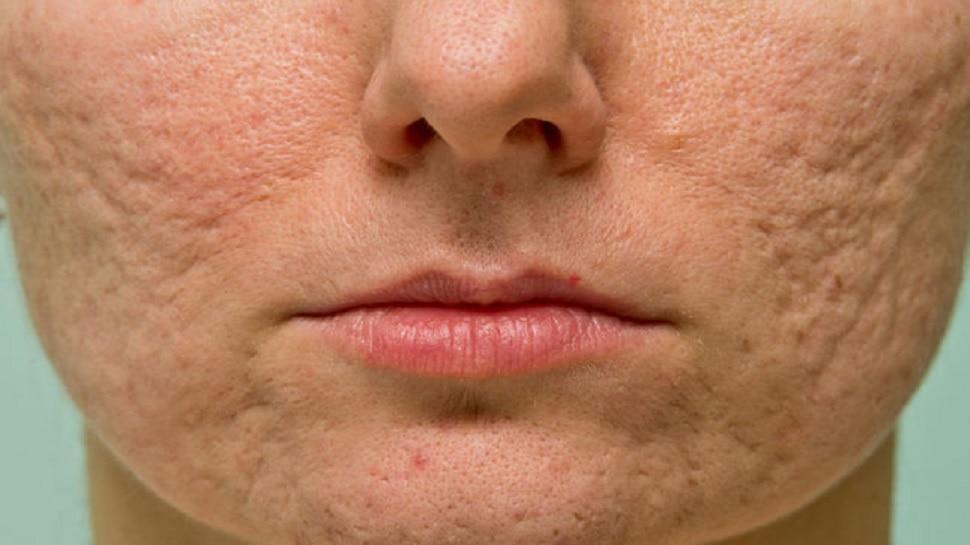 Skin Care: क्रीम छोड़कर चेहरे पर लगाएं ये तेल, मुंहासे और झुर्रियां होंगी खत्म, मिलेगा निखार