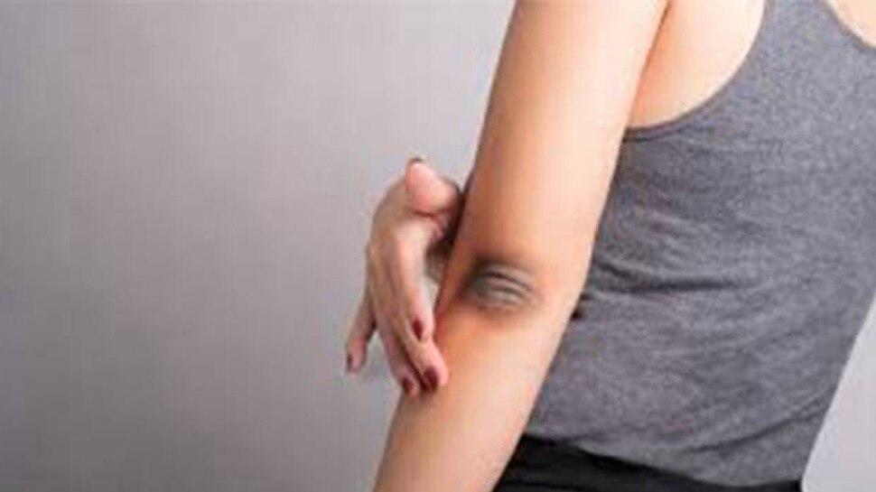 Skin Care Tips: कोहनी और घुटने के कालेपन को रातों-रात हटा देंगी ये 5 चीजें, बिल्कुल साफ नजर आएगी आपकी स्किन