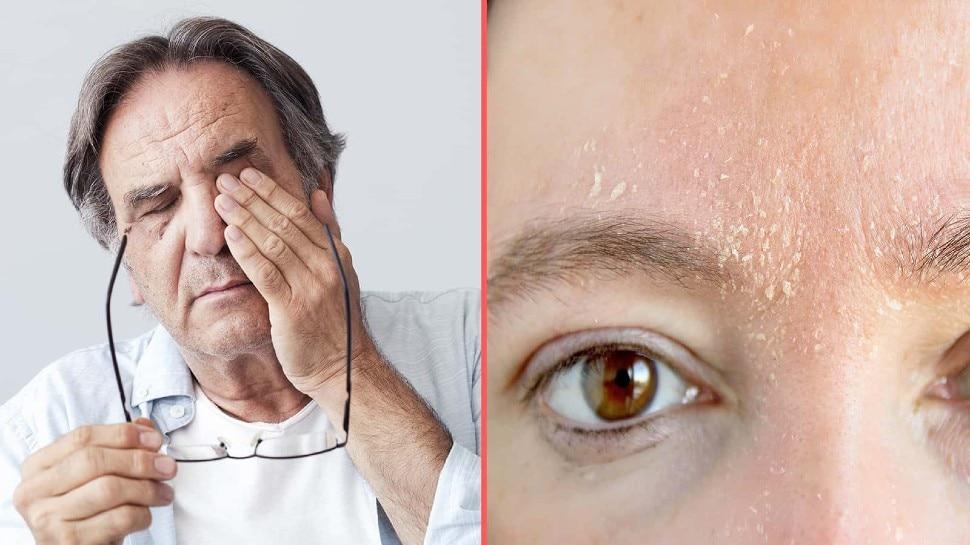 शरीर में इस विटामिन की कमी होने पर आंखों से दिखने लगता है बेहद कम, इन चीजों को खाने से मिलेगा फायदा