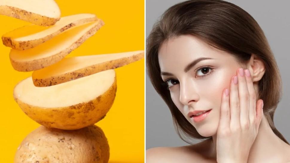 Benefits of potato face pack: इस तरह लगाएं आलू, दाग-धब्बे हो जाएंगे गायब, चमक उठेगा आपका चेहरा