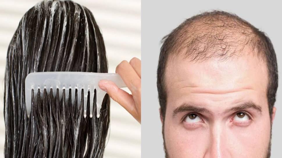 क्या हेयर कंडीशनर लगाने से Hair Fall होता है? जान लें सही तरीका, वरना हो जाएंगे गंजे