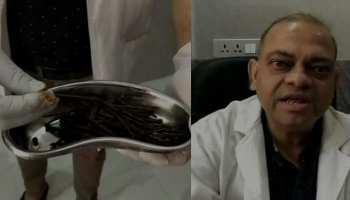 OMG! व्यक्ति के पेट से निकली 116 कीलें, छर्रे और तार, डॉक्टर्स भी रह गए दंग!