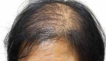hair care: इन जड़ी-बूटियों से बालों को मिलेगा नया जीवन, मजबूत और घने हेयर आसानी से पा सकते हैं आप