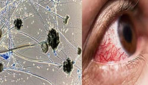 ब्लैक फंगस बन गया महामारी? एक्सपर्ट से जानिए इससे जुड़ी सभी जरूरी बातें