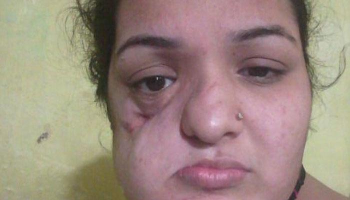 कैंसर पीड़ित पाकिस्तानी महिला ने सुषमा से मांगी मदद, भारतीय दूतावास ने ख़ारिज किया है मेडिकल वीज़ा