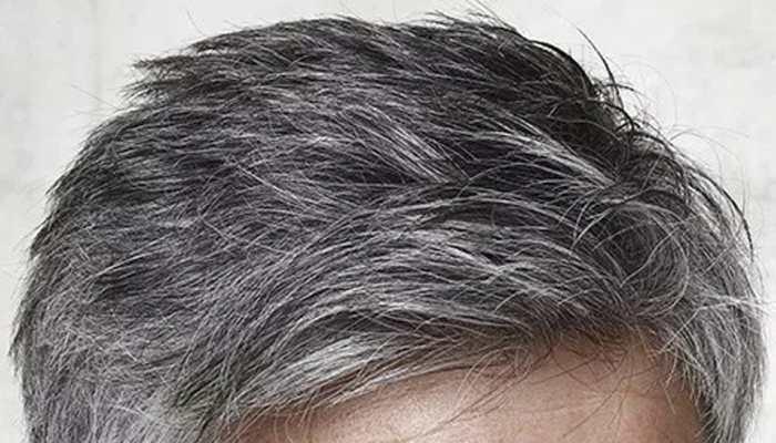 जवानी में सफेद होते बाल से आप भी हैं परेशान तो अपनाएं ये नुस्खे