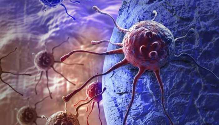 ऑरोफेरिंजियल कैंसर: 10 फीसदी कैंसर मरीज इसके शिकार, जानें लक्षण और उपचार