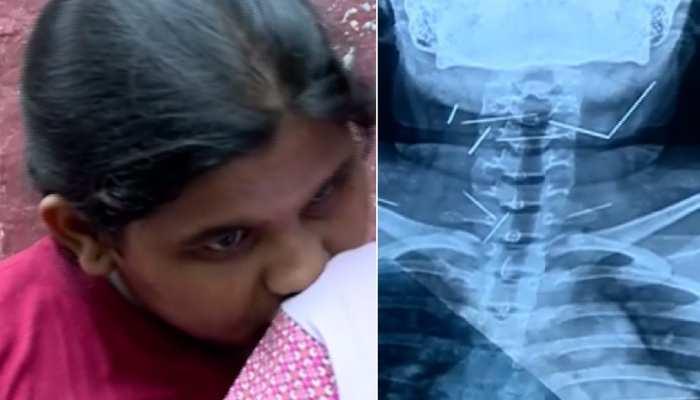 doctors discover 10 needles stuck in girls throat