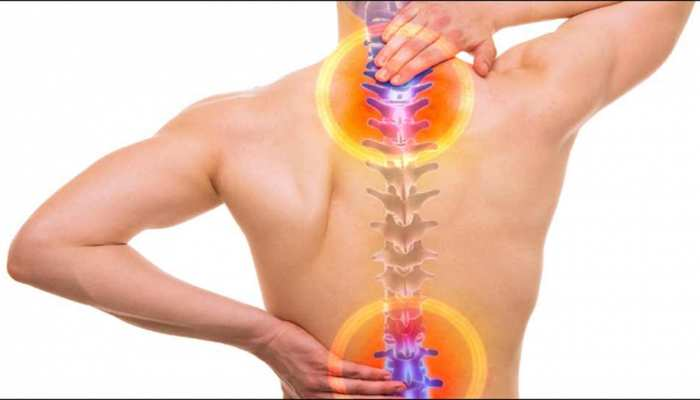 Spinal stenosis is a narrowing of the spaces within your spine