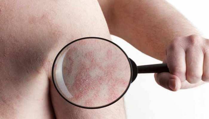 विश्व सोराइसिस दिवस: दुनिया में 12.50 करोड़ लोग त्वचा रोग से पीड़ित