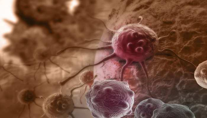 Cancer cases increased by 15.7 percent over the last six years: Study