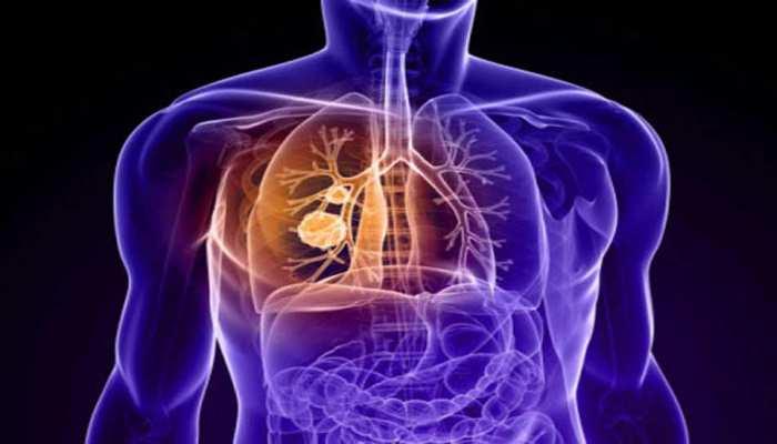 पटना वाले हो जाइए सावधान! वायु प्रदूषण से बढ़ रहा है कैंसर का खतरा