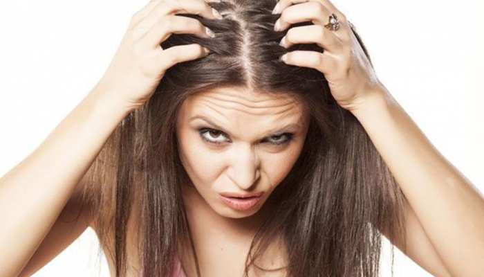 Home Remedies: सर्दियों में रूखे और बेजान बालों से हो गए हैं परेशान, तो ऐसे रखें ख्याल...