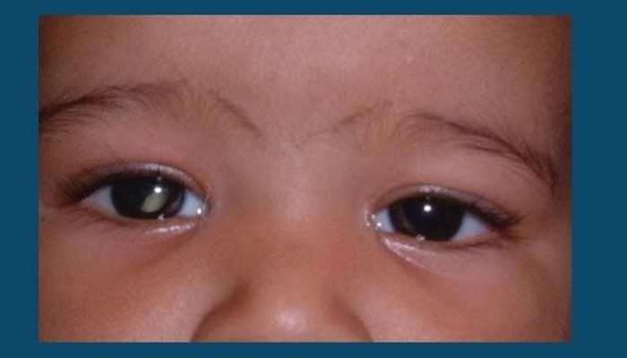 जानिए क्या है आंखों का कैंसर? स्मार्टफोन की मदद से कैसे होता है डिटेक्ट