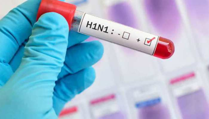 इंदौर में हर दूसरे दिन स्वाइन फ्लू के एक मरीज की मौत, गर्मी में भी वायरस सक्रिय