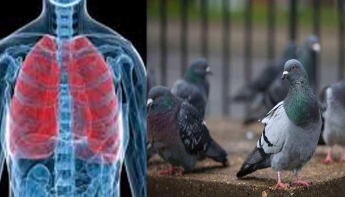 जोधपुर: कबूतरों के कारण लोगों के फेफड़ों में हो रहा संक्रमण डॉक्टरों के लिए बना चुनौती