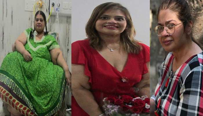 Surgery helps 300 kg woman slim down to 86 kg
