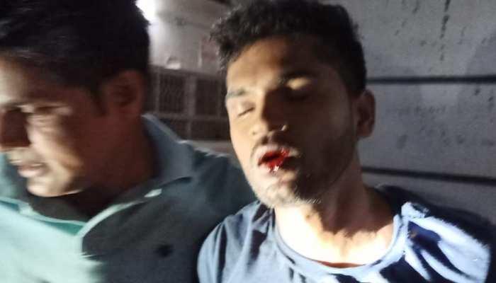 MP: अघोषित बिजली कटौती पर फूटा कांग्रेस पार्षद का गुस्सा, भाई के साथ की JE की पिटाई