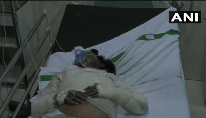 बरेली: महिला होमगार्ड पर केरोसिन डालकर जिंदा जलाने की कोशिश, दामाद पर लगाया आरोप