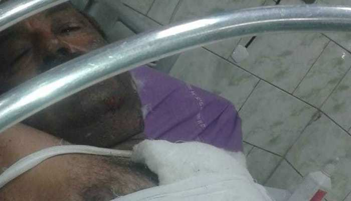 थप्पड़ के बदले बुजुर्ग दुकानदार को पेट्रोल डाल जलाया, आरोपी गिरफ्तार