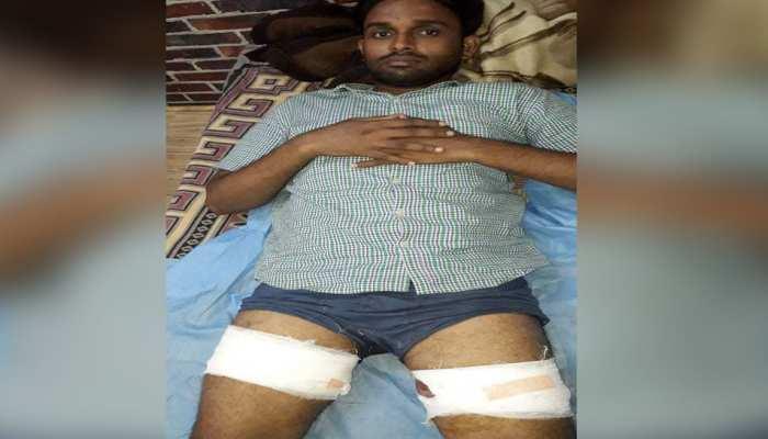 दिल्ली पुलिस ने लूट की वारदात को किया नाकाम, बदमाश के पैर में गोली मारकर पकड़ा