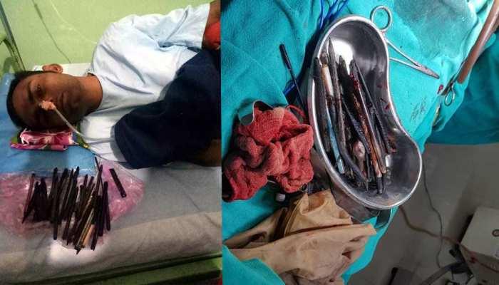 OMG: ऑपरेशन के दौरान डॉक्टर के उड़े होश, युवक के पेट से निकले लोहे की कील और चमड़े का सामान