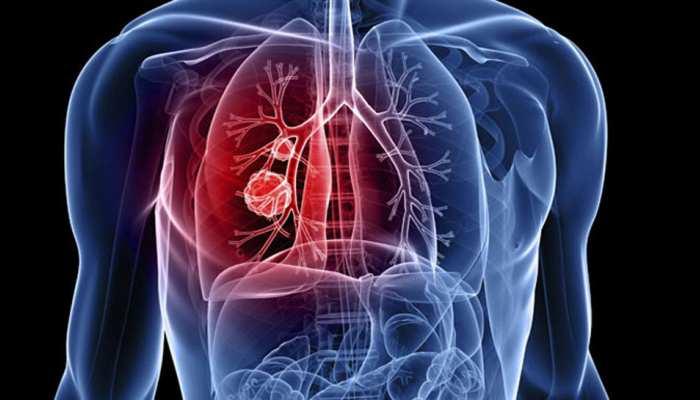 दिल्ली: सांसों में जहर घोलती हवा- 28 साल से कम उम्र में फेफड़ों के कैंसर का पहला मामला