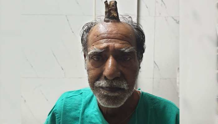 OMG! जब इंसान के सिर पर निकल आया 'सींग', मामला देख डॉक्टर भी रह गए हैरान