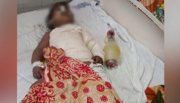 MP: बच्ची ने नहाने के लिए खुद पर डाल लिया खौलता पानी, इलाज के दौरान हुई मौत