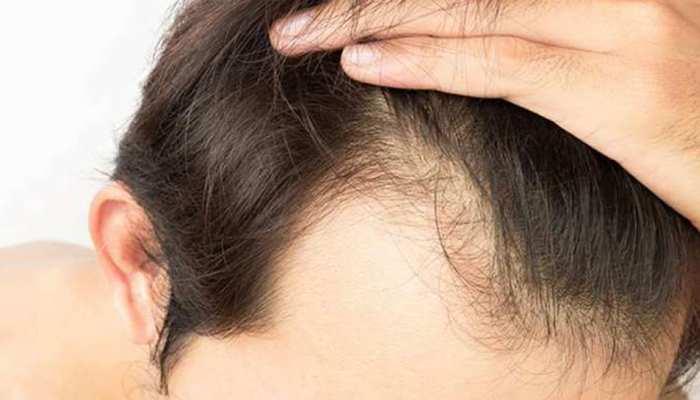 क्या आपके बाल भी बहुत झड़ते हैं- दिल्लीवालों पर हुए एक सर्वे में चौंकाने वाला खुलासा