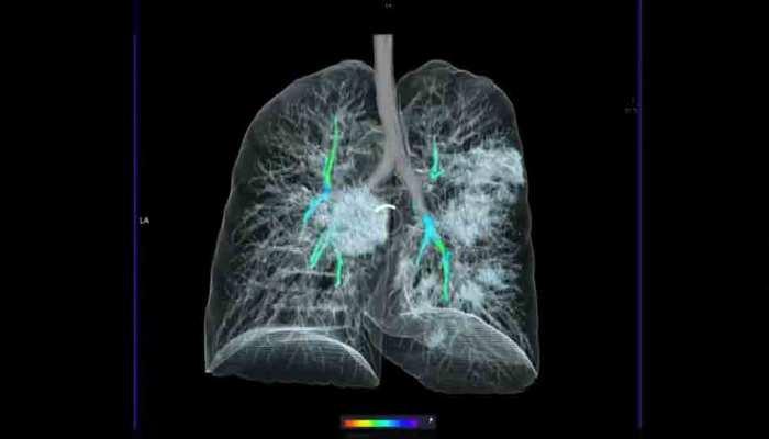 Corona के कहर के बीच सामने आई कोरोना वायरस से संक्रमित मरीज के फेफड़े की 3D इमेज