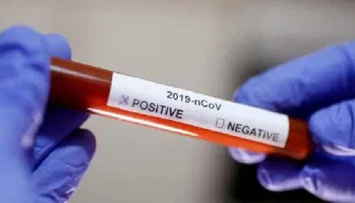 नोएडा में कोरोना वायरस से पहली मौत, सेक्टर 22 का रहने वाला था मरीज़