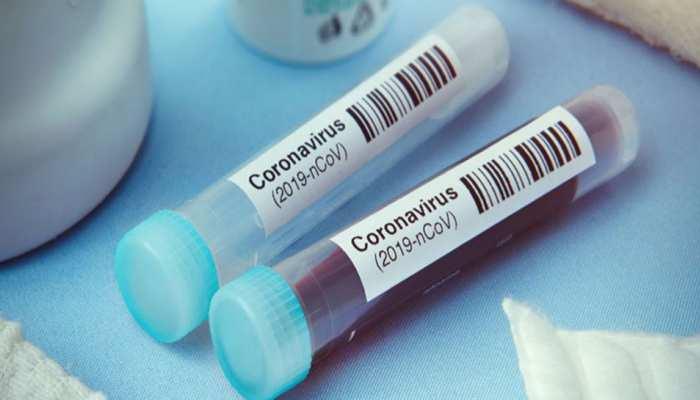 बीते 24 घंटों में छत्तीसगढ़ में सामने आए 243 नए कोरोना संक्रमित, राज्य में 1564 एक्टिव केस