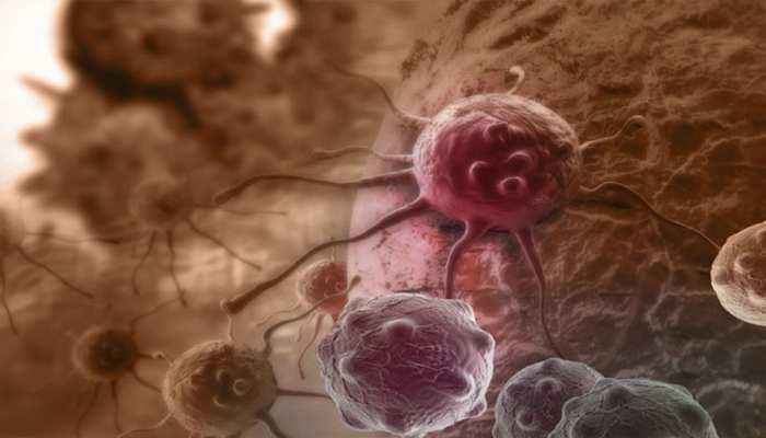 तेजी से फैल रहा कैंसर, 5 साल में बढ़ेंगे 12% मामले