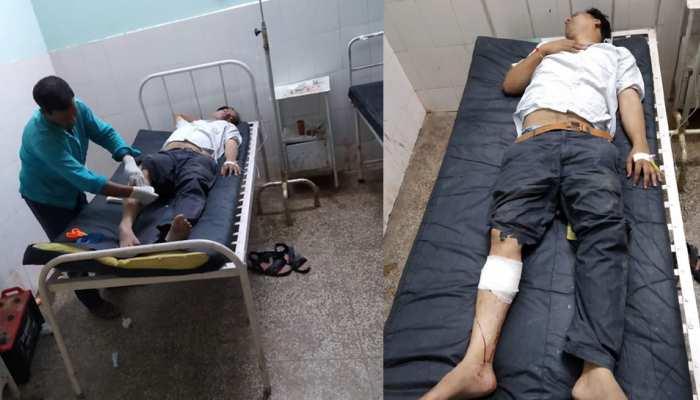 आगरा बस हाईजैक: मास्टरमाइंड प्रदीप गुप्ता की पुलिस से मुठभेड़, पैर में गोली लगी