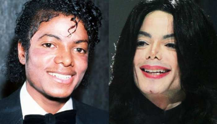 Michael Jackson took these steps to improve his look