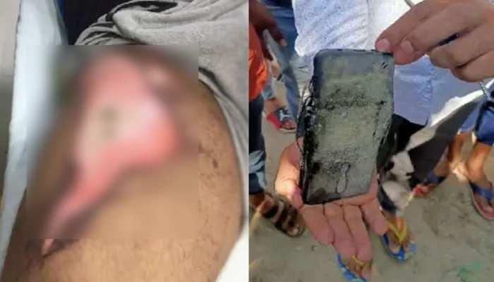 ग्रेटर नोएडा: जेब में रखा मोबाइल फोन हुआ ब्लास्ट, जख्मी युवक अस्पताल में भर्ती