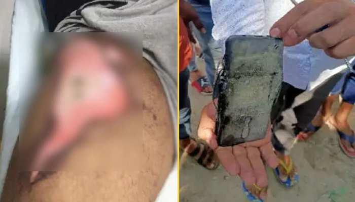 जेब में रखे मोबाइल में हुआ धमाका, ज़ख्मी शख्स को अस्पताल में कराया दाखिल