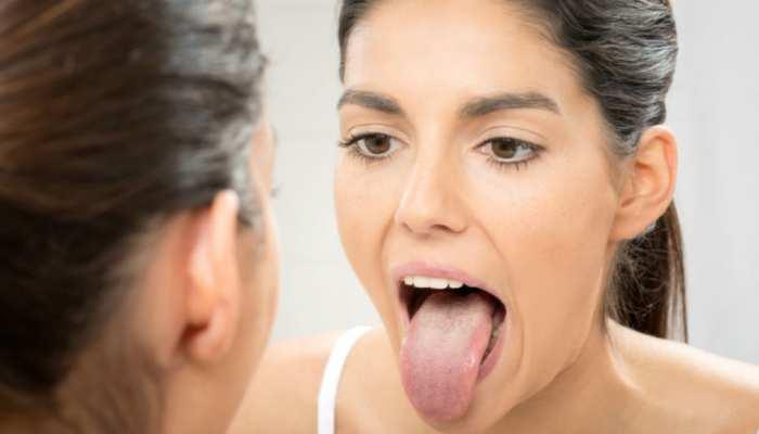 जीभ के रंग से समझे किस बीमारी की चपेट में आ रहा आपका शरीर, काले धब्बे पड़ना हो सकता खतरनाक