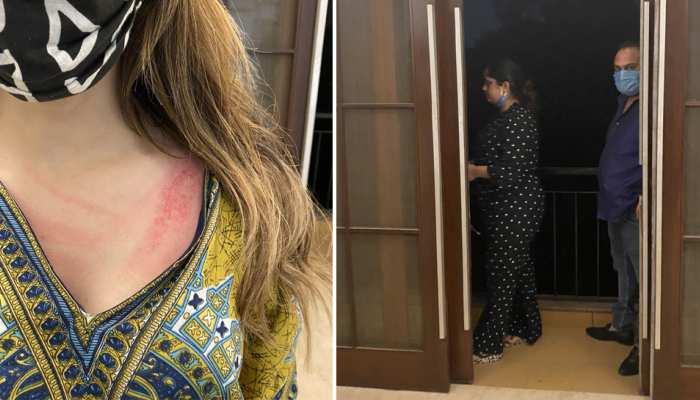 दिल्ली: नूर भट्ट को कश्मीरी होने की मिली सज़ा! मकान मालकिन ने की मारपीट और कहा 'आतंकी'