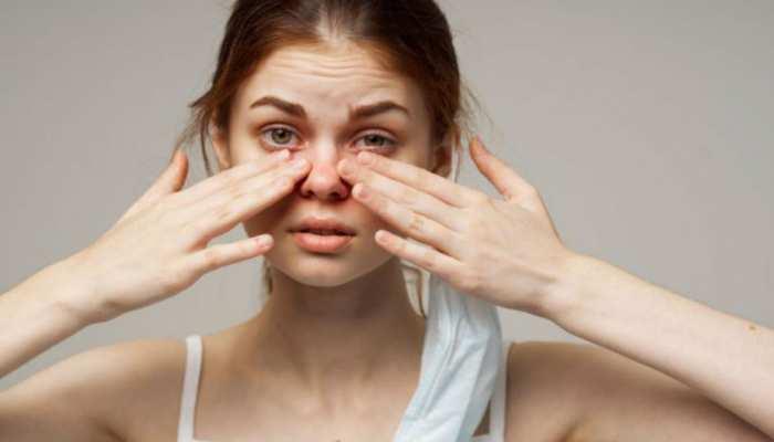 बस इन घरेलू उपायों को अपनाएं और आंखों की जलन व दर्द की समस्या से पाएं छुटकारा
